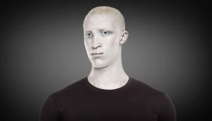 4_albino_human_et_05b9221478fa4649c3a40d233197f7bb_1600x0